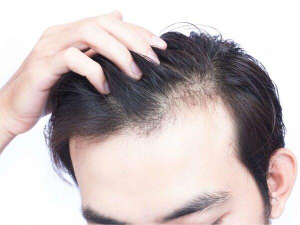 با این ده روش موهای شما دوباره مانند دوران جوانی تان رشد خواهد کرد