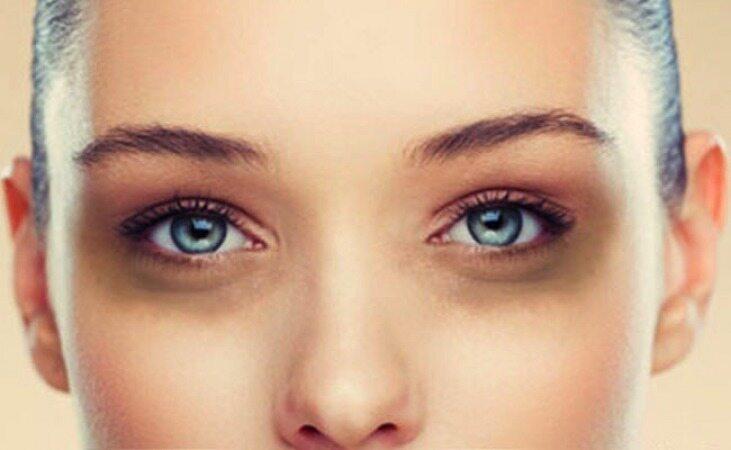 گودی و سیاهی زیر چشم را با ترک این ۶ عادت کاهش دهید