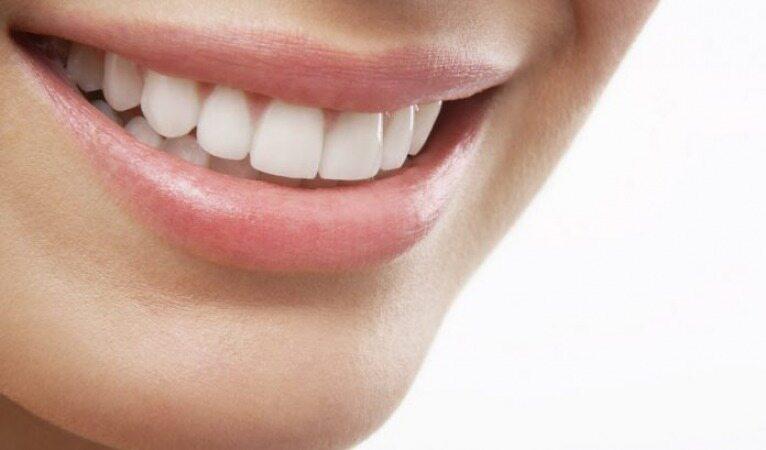بدون رفتن به دندانپزشکی دندان های خود را جرم گیری کنید