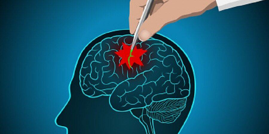 این نشانه به شما می گوید که مبتلا به تومور مغزی شده اید