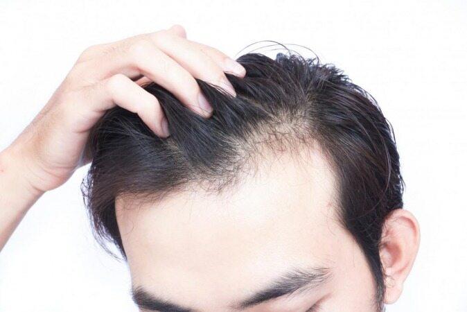 با این کار ریزش مو های خود را تا ابد متوقف کنید !