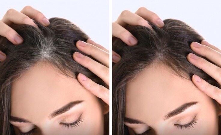 بدون رنگ کردن مو، موهای سفید خود را به حالت قبل بازگردانید