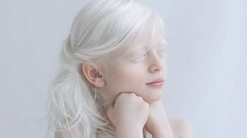 این افراد با رنگ موی سفید بسیار زیبا شدند