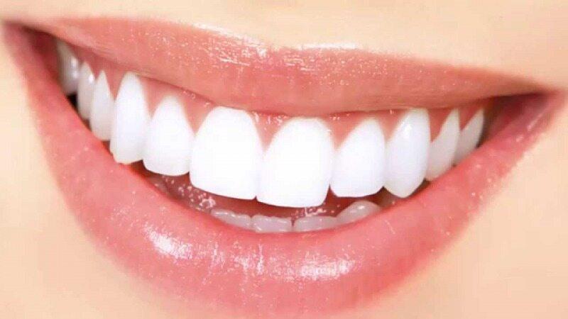 کشف یک شیرینی جدید برای تقویت و سفیدی دندانها