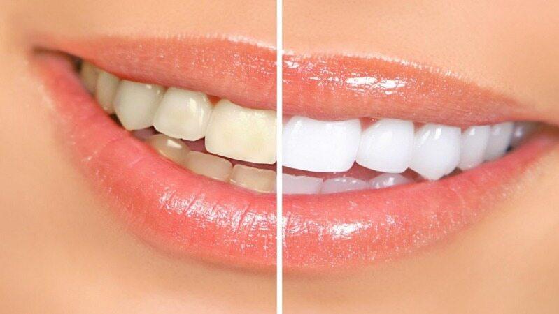 با انجام این کار ها مانع از زرد شدن رنگ دندان هایتان شوید