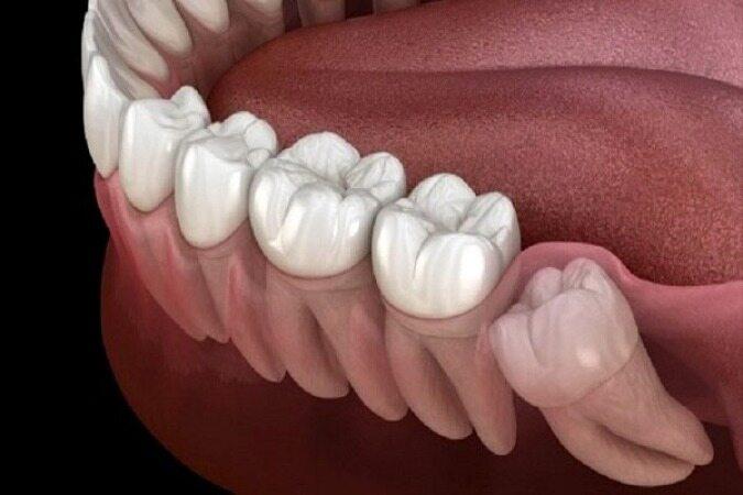 چرا دندان عقل در انسان دیر رشد میکند؟